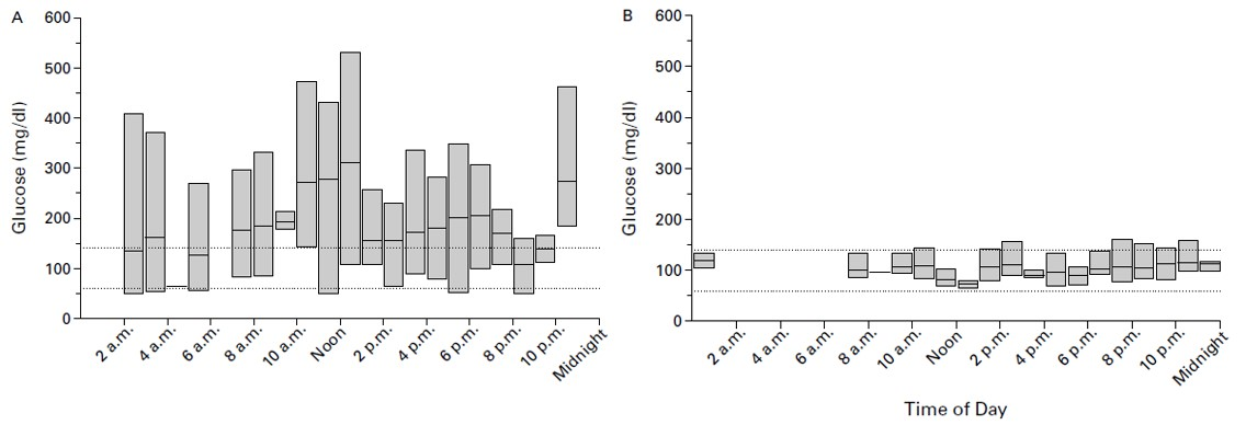 En la imagen se pueden observar las fluctuaciones en los niveles de glucosa en sangre en pacientes de diabetes antes (A) y después (B) de ser trasplantados.